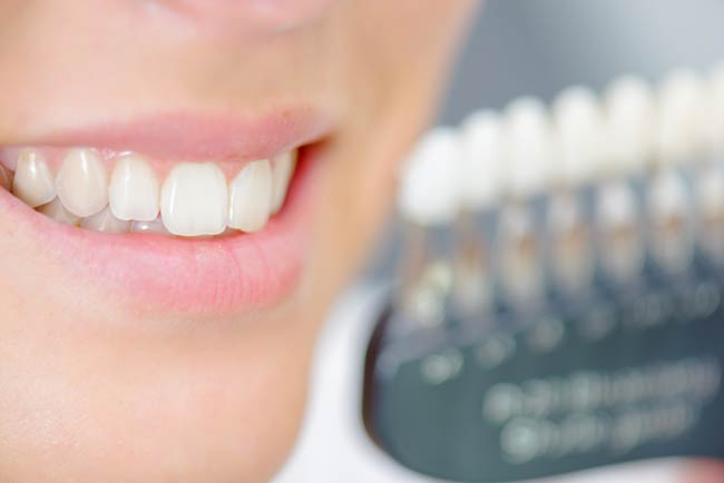 Benefits of Tooth Colored Fillings
