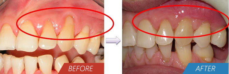 Periodontal - Root Coverage