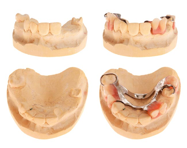 Teeth Space Maintainers